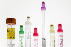 Laboruntersuchungen - Dr. Gärtner -Facharzt für Innere Medizin / Hausarzt in Neustadt in Holstein